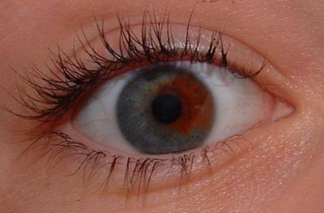 Глаза Факты