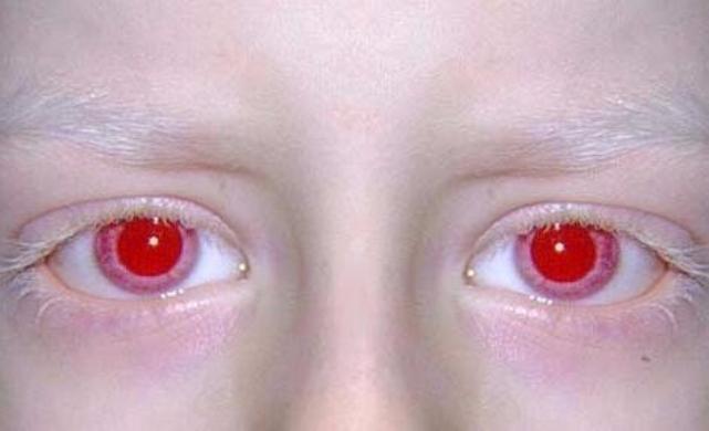 красные Глаза Факты