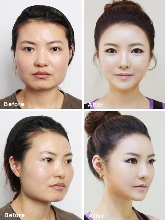 Пластическая хирургия овал лица