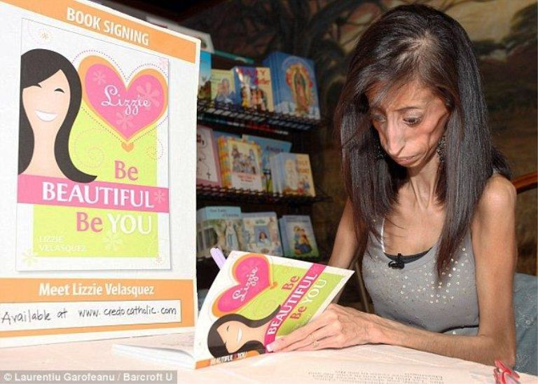 Lizzie velasquez eats everything photos