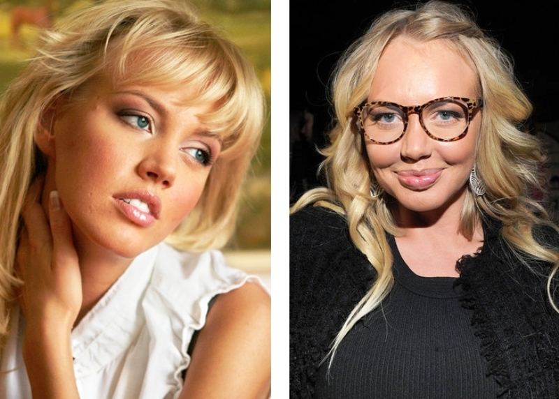 фото звёзд до и после
